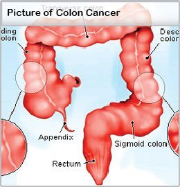 Dr. Diag - Peritoneum malignus tumorai
