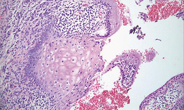 diagnosztikus vastagbélrák gége papillomatosis meghatározza