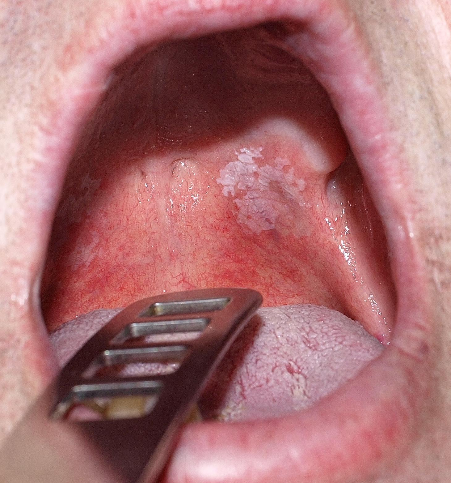 A papilloma vírus tünetei a szájban