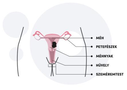 HPV és méhnyakrák   bestcarwash.hu