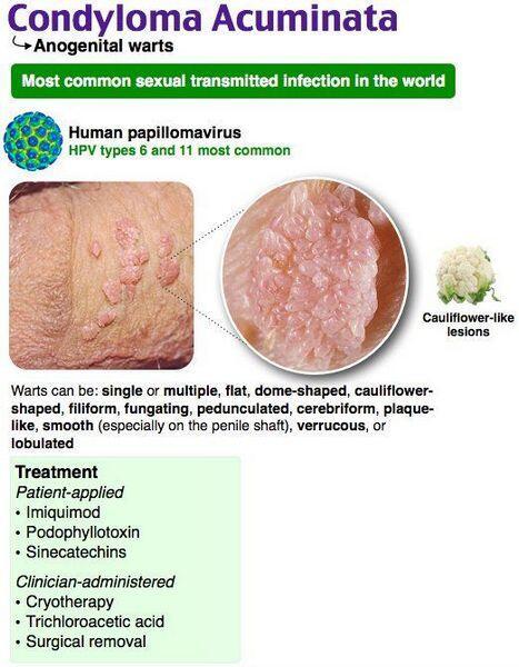 édes paraziták önpusztítás vaksinasi hpv adalah