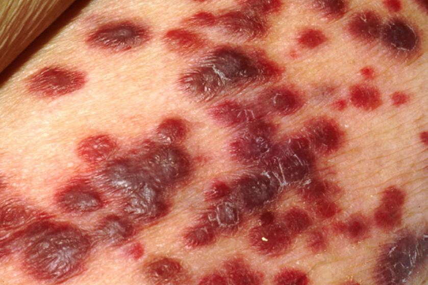 mi történik, ha elszakad egy papilloma rák nao hodgkin