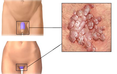 moxibustion genitális szemölcsök intim helyeken következményei