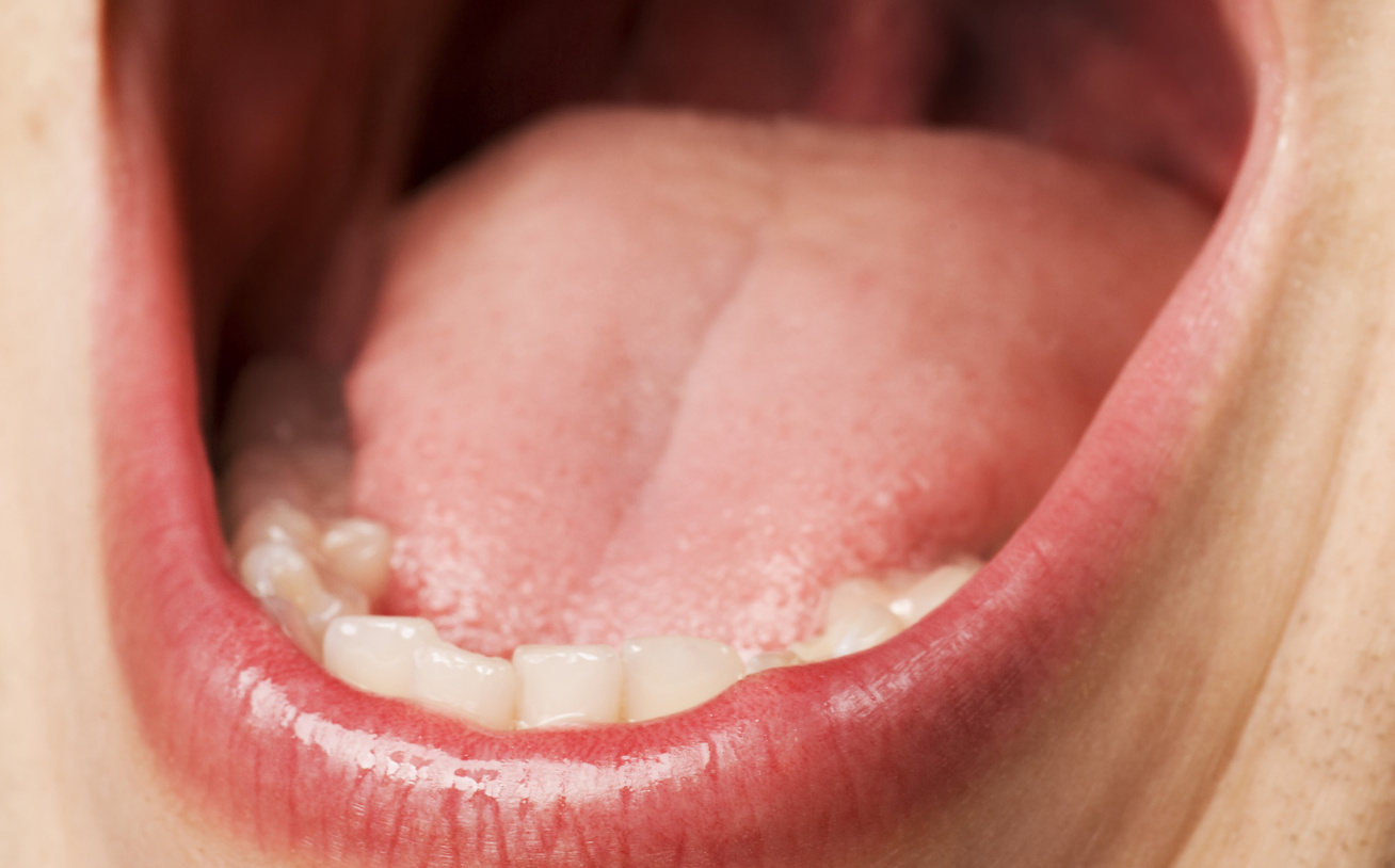 emberi papillomavírus hpv kínai nyelven mi a negatív enterobiosis