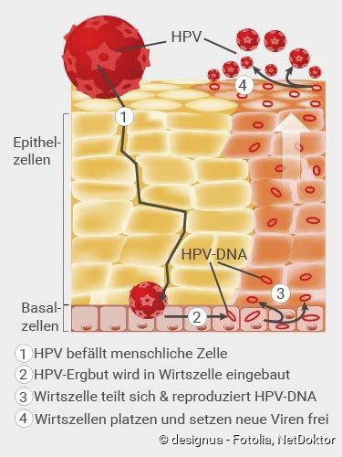 szemölcsök és Escherichia coli