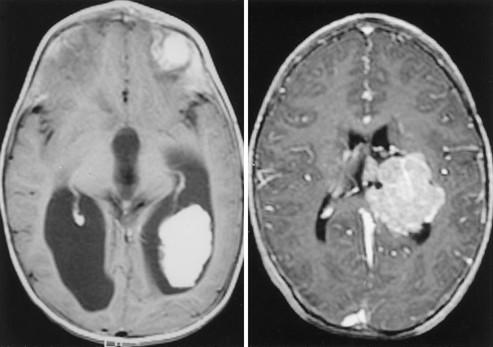 choroid plexus papilloma tumor féreg orvos
