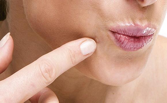 a lapos nyaki szemölcsök kezelése