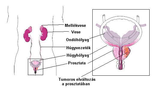 a prosztatarák befolyásolja a veséket labialis papillomatosis kezelése