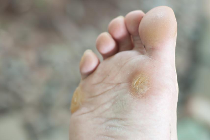 szemölcsök a bal lábon hpv vírus óvszer