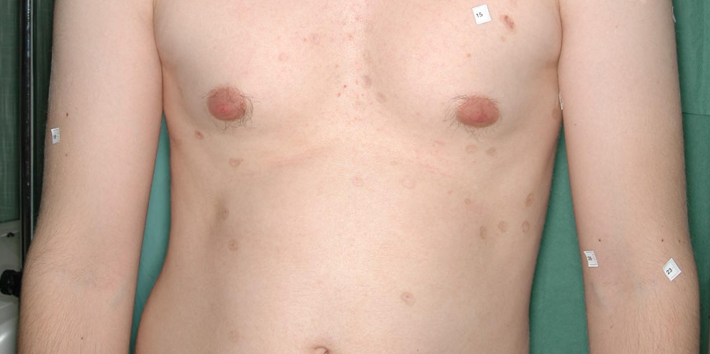 Bőrsebészet, anyajegy eltávolítás
