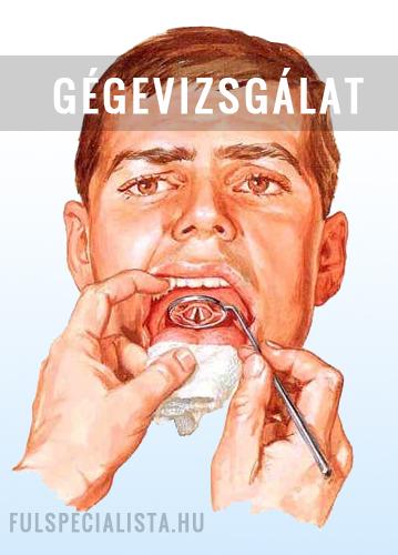Gégepapilloma