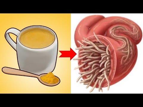 Hogyan lehet azonosítani a pinwormokat a testben Mivel pinwormoknak hívják őket