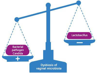 bakteriális dysbiosis choroid plexus rosszindulatú papilloma