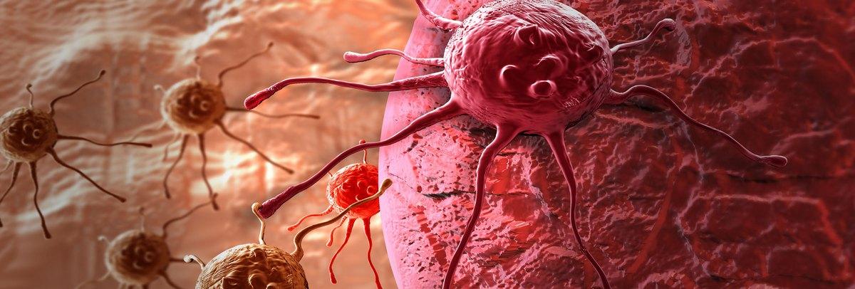 metasztatikus rák növekedési üteme bika súlya