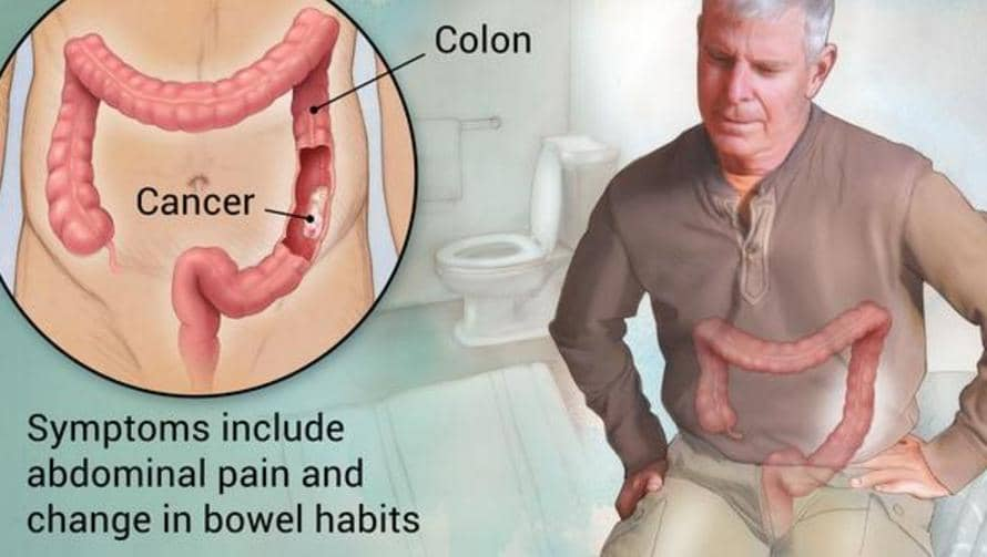 Papilloma vírus tünetei a torokban