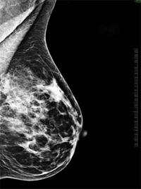 Mell ultrahang: az is látható, ami a tapintásos vizsgálatból nem derül ki