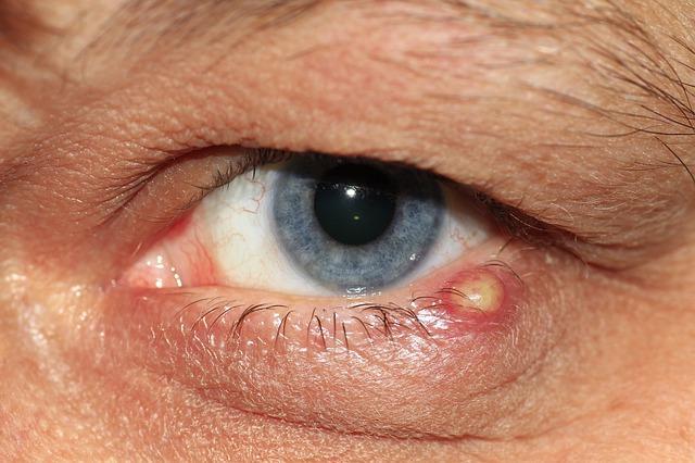 a szemhéjon lévő papillómák kezelést okoznak a test méregtelenítése meleg vízzel