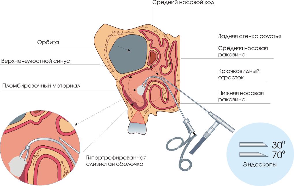 Papilloma az orrban - hogyan néz ki és hogyan tisztítható