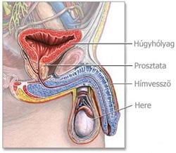 Férfi vastagbélrák tünetei - Vastagbélrák