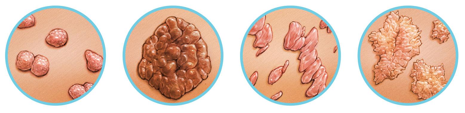 Van-e hpv torokrákom, HPV: ezek a rákot okozó vírusok