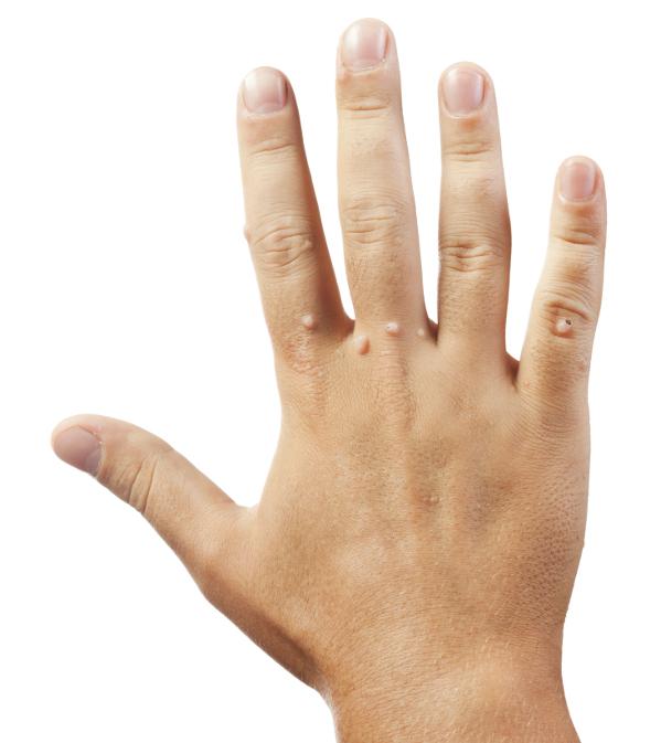 szemölcsök a kéz típusain
