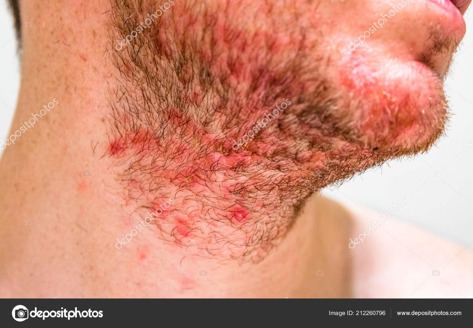 szakáll dermatitis papillom entfernen oder nicht